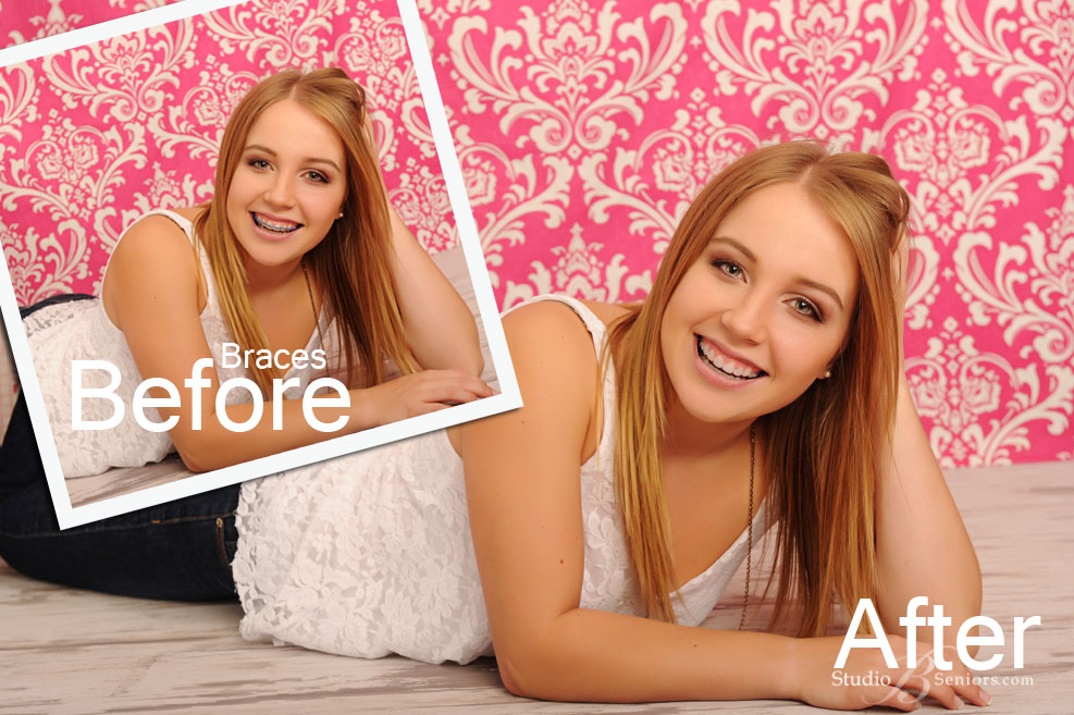 Senior-pictures-example-of-digital-removal-of-braces-at-Studio-B-Portraits