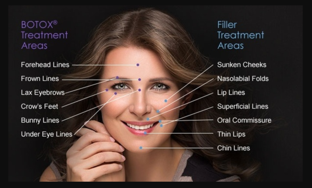botox-filler-difference
