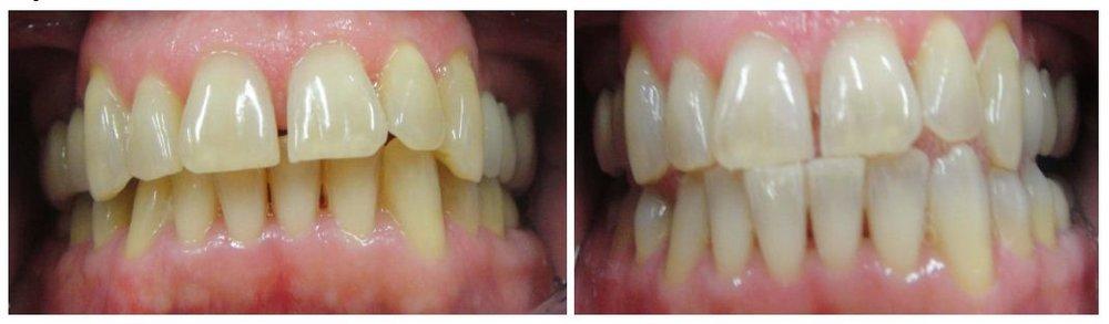 teeth-whitening-3