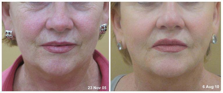 Facial-Rejuvenation
