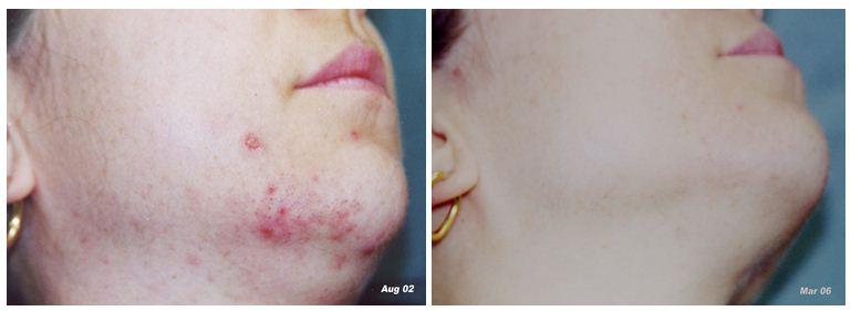 Facial-rejuvenation-3