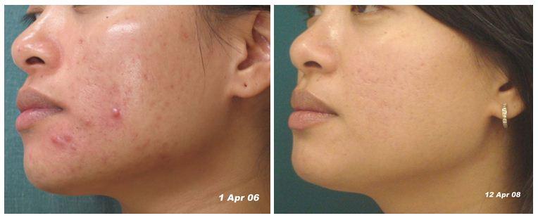 facial-rejuvenation-5