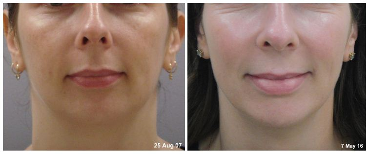 facial-rejuvenation-6