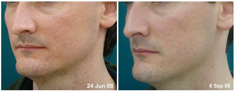 26. Before and after.JPG