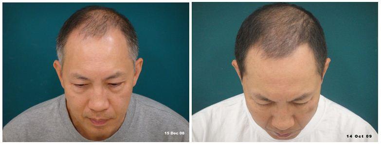 hair-loss-4