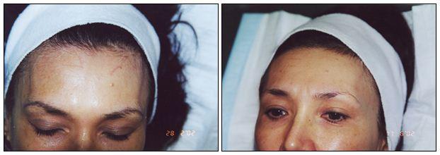122.Scars-Keloids.JPG