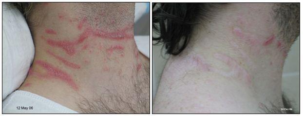 132.Scars-Keloids.JPG