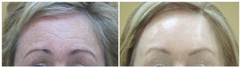 137.Anti-wrinkle-treatment.JPG
