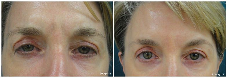 138.Anti-wrinkle-treatment.JPG