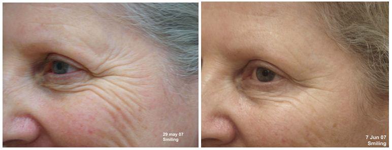 139.Anti-wrinkle-treatment.JPG