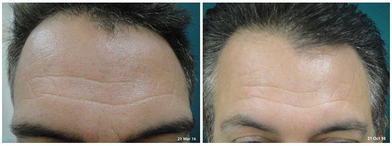 140.Anti-wrinkle-treatment.JPG