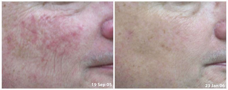 141.Anti-wrinkle-treatment.JPG