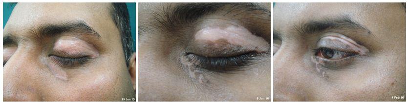 150.Vitiligo.JPG