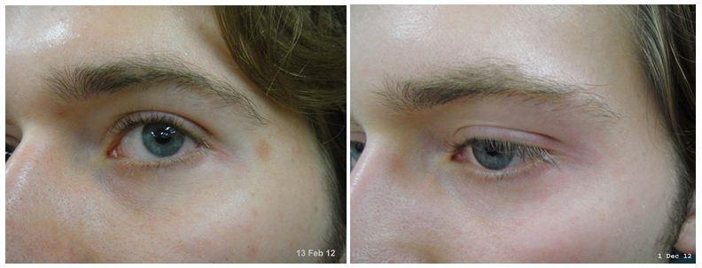 151.Vitiligo.JPG