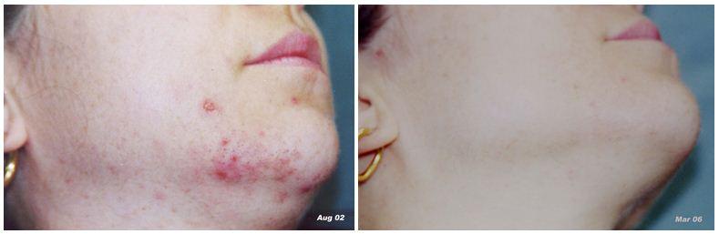 188.Hair-removal.JPG