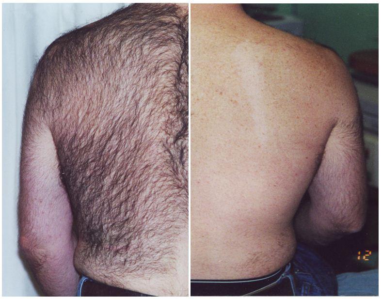 190.Hair-removal.JPG