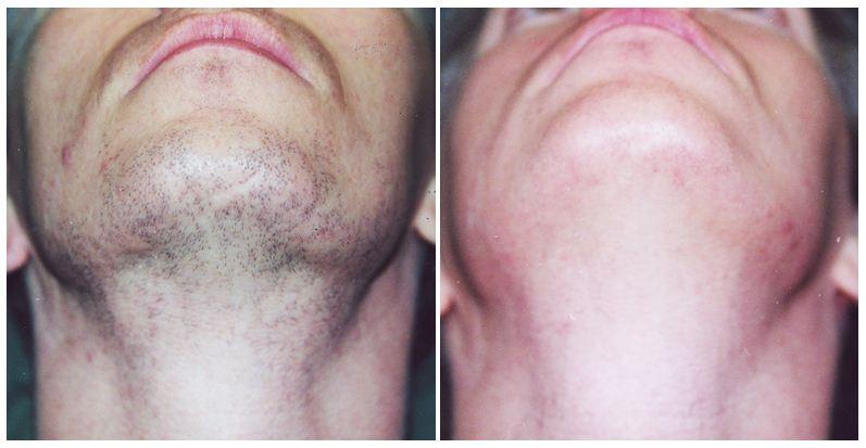 197.Hair-removal.JPG