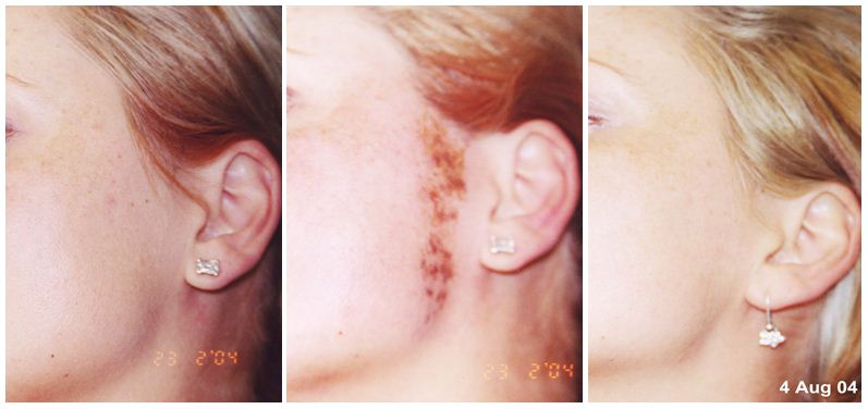 199.Hair-removal.JPG