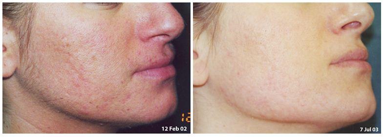 220.Large-pores.JPG