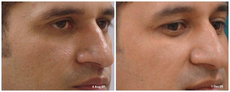 221.Large-pores.JPG