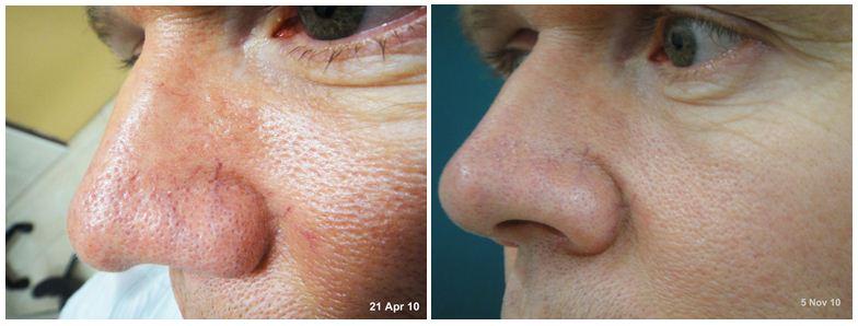 223.Large-pores.JPG