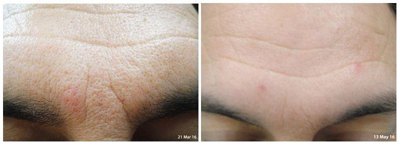 224.Large-pores.JPG