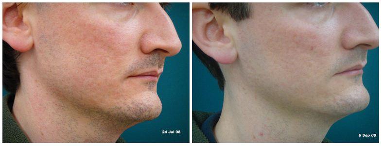 225.Large-pores.JPG