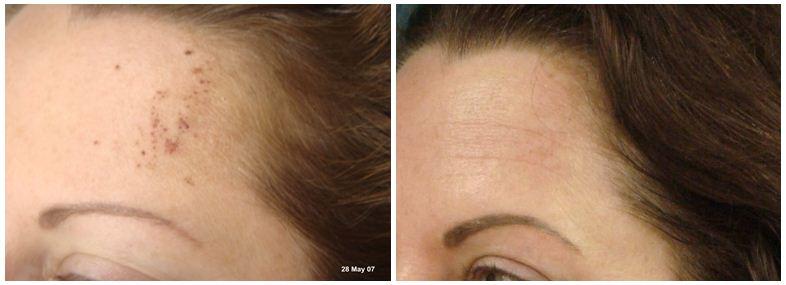 240.skin-pigmentation.JPG