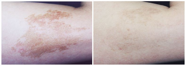 241.skin-pigmentation.JPG