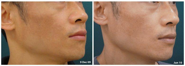 243.skin-pigmentation.JPG