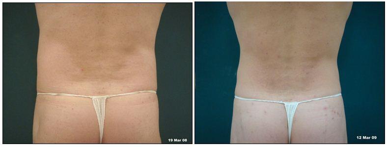 261.fat-reduction.JPG