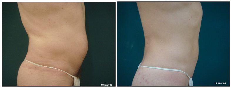 262.fat-reduction.JPG