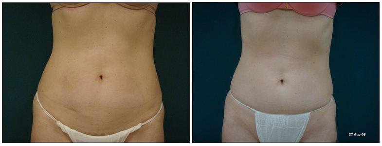 264.fat-reduction.JPG