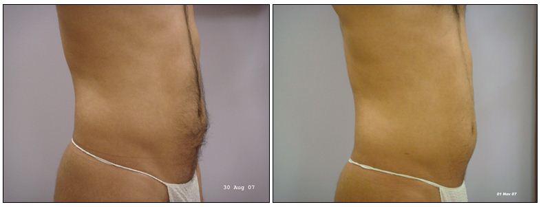 265.fat-reduction.JPG