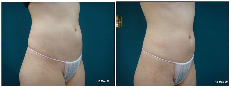 267.fat-reduction.JPG