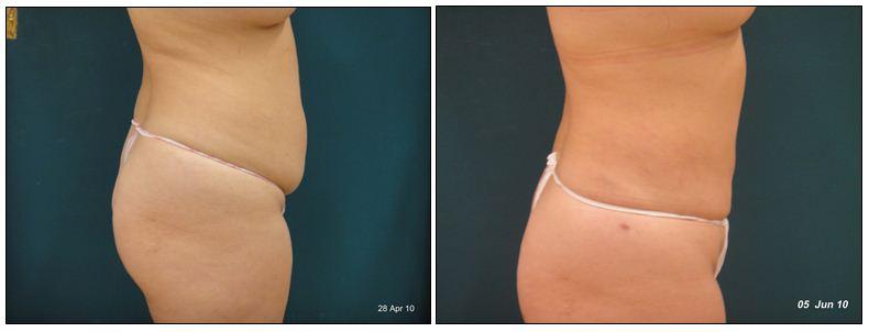 271.fat-reduction.JPG