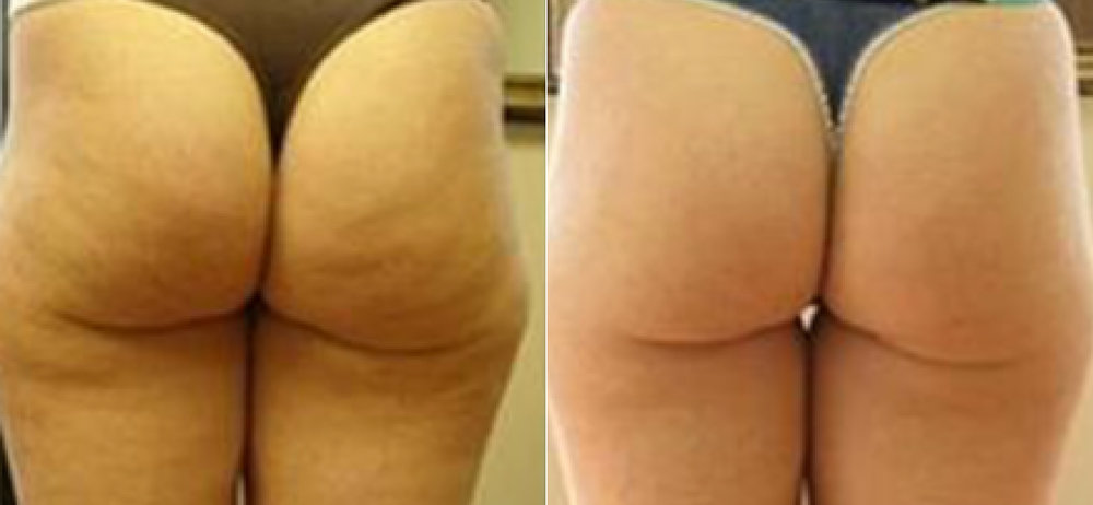 Results after 8 sessions of Cellulite Reduction