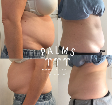 Results after a single HIFU treatment on lower belly, combined with a duo cryolipolysis placed on lower and upper belly. Note, these are the real results of the Palms Body Clinic business owner! However results do vary between clients and these are shown by way of example only.