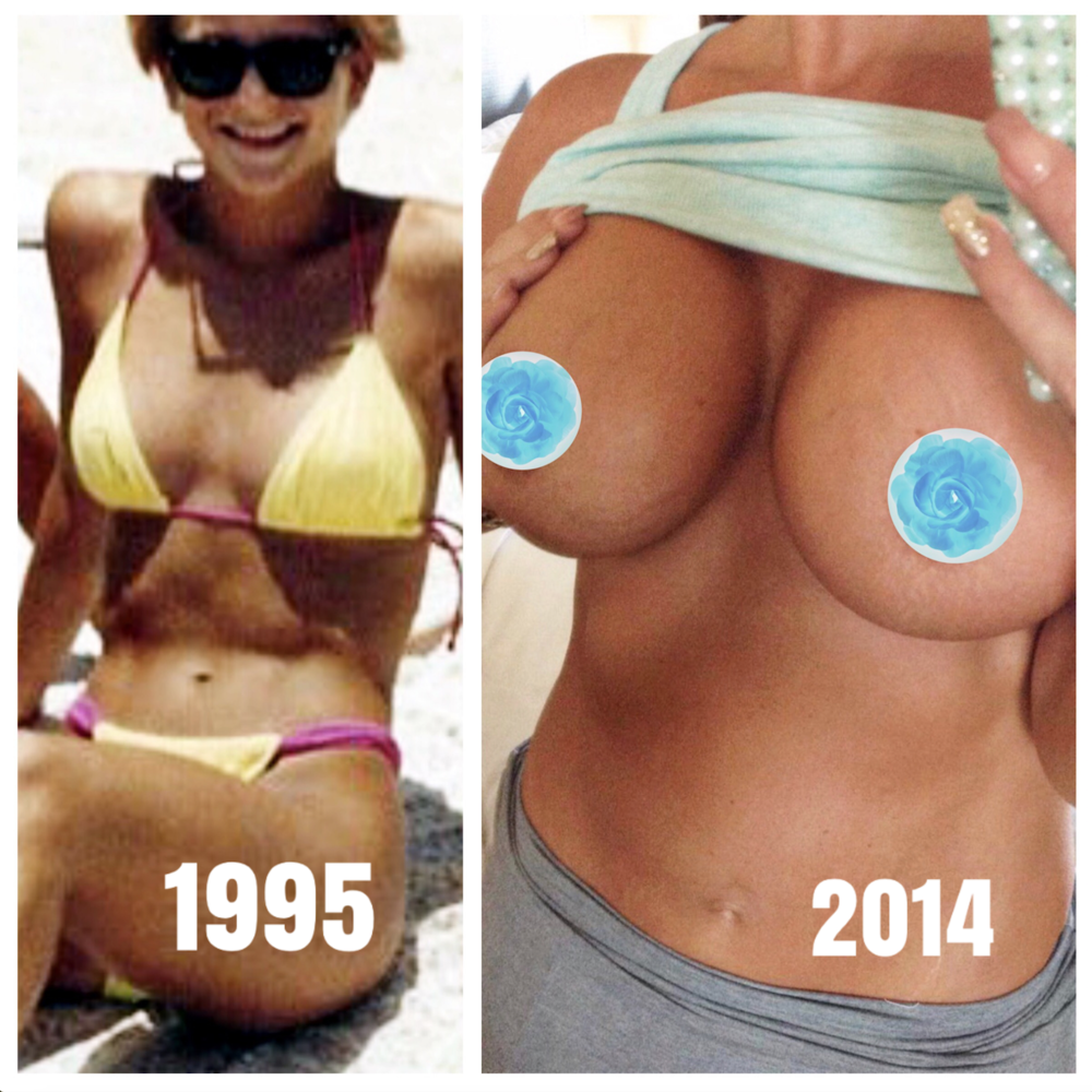 My original pre-op breasts.   And after my third set at 41 years old. -
