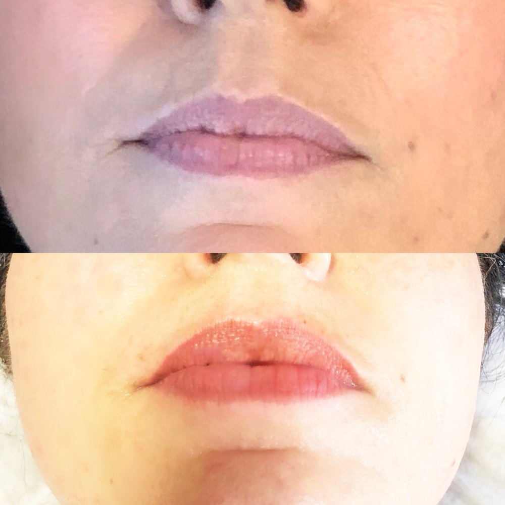 Maria's Before & After - Nano Fill Lip Treatment with infused collagen