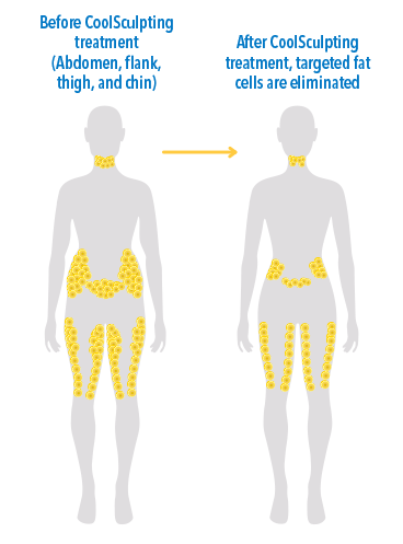 Fat Reduction Vs Weight Loss Coolsculpting Dermatologist The