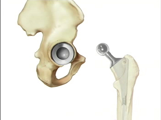 What is a Hip Replacement Surgery