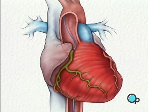 What is a Cardiac Catheterization Angiography