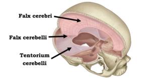 På billedet ses vores hjernehinder, hvor hjernevæsken (cerebrospinalenvæsken) cirkulerer. Hjernevæsken søger for at forsyne hjernen med næring, samt at borttransportere affaldsstoffer.  Ved migræne kan disse hjernehinder blive spændte.  Andre faktorer, der kan forårsagde rigiditet i membranerne er indtagelse af medicin, sukker og kaffe.