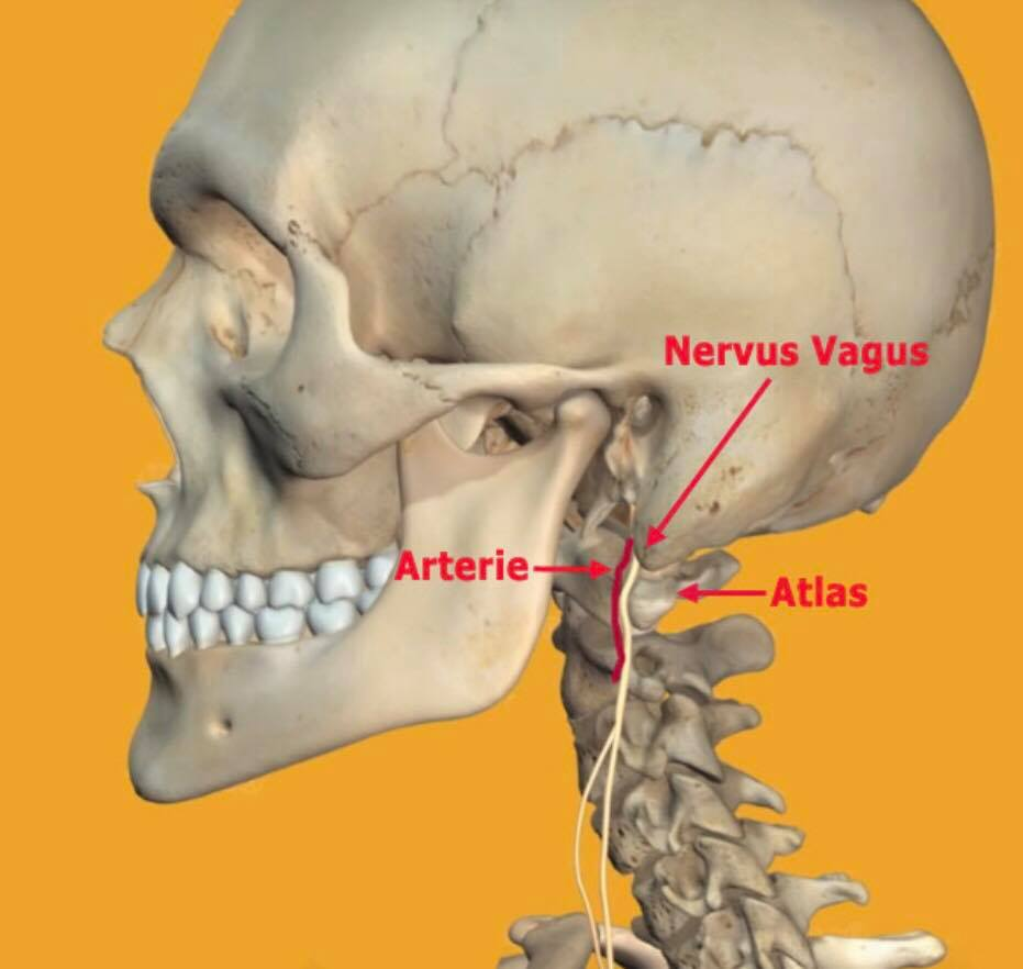 På billedet ses vores Vagus nerve samt den store arterie, som kan blive klemt, hvis Atlas bliver forskubbet.