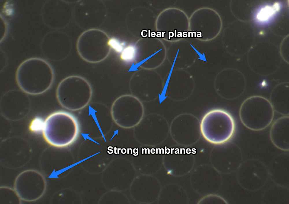 post detox aged pleomorph released from membranes but plasma clear small.jpg