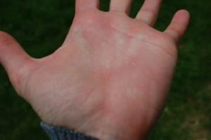 stinging nettle hand