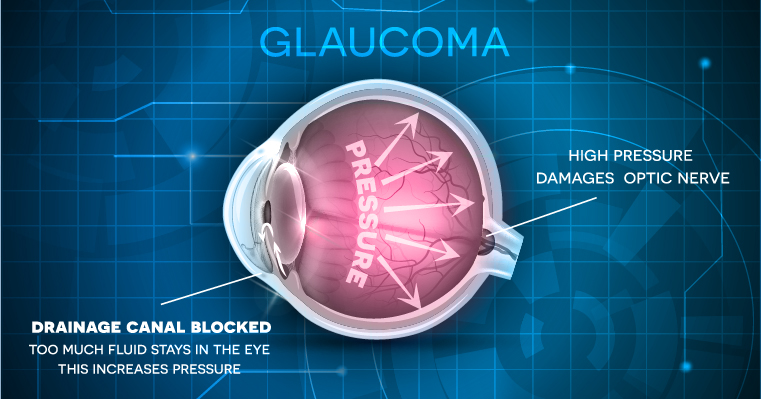 Glaucoma - McFarland Eye Care