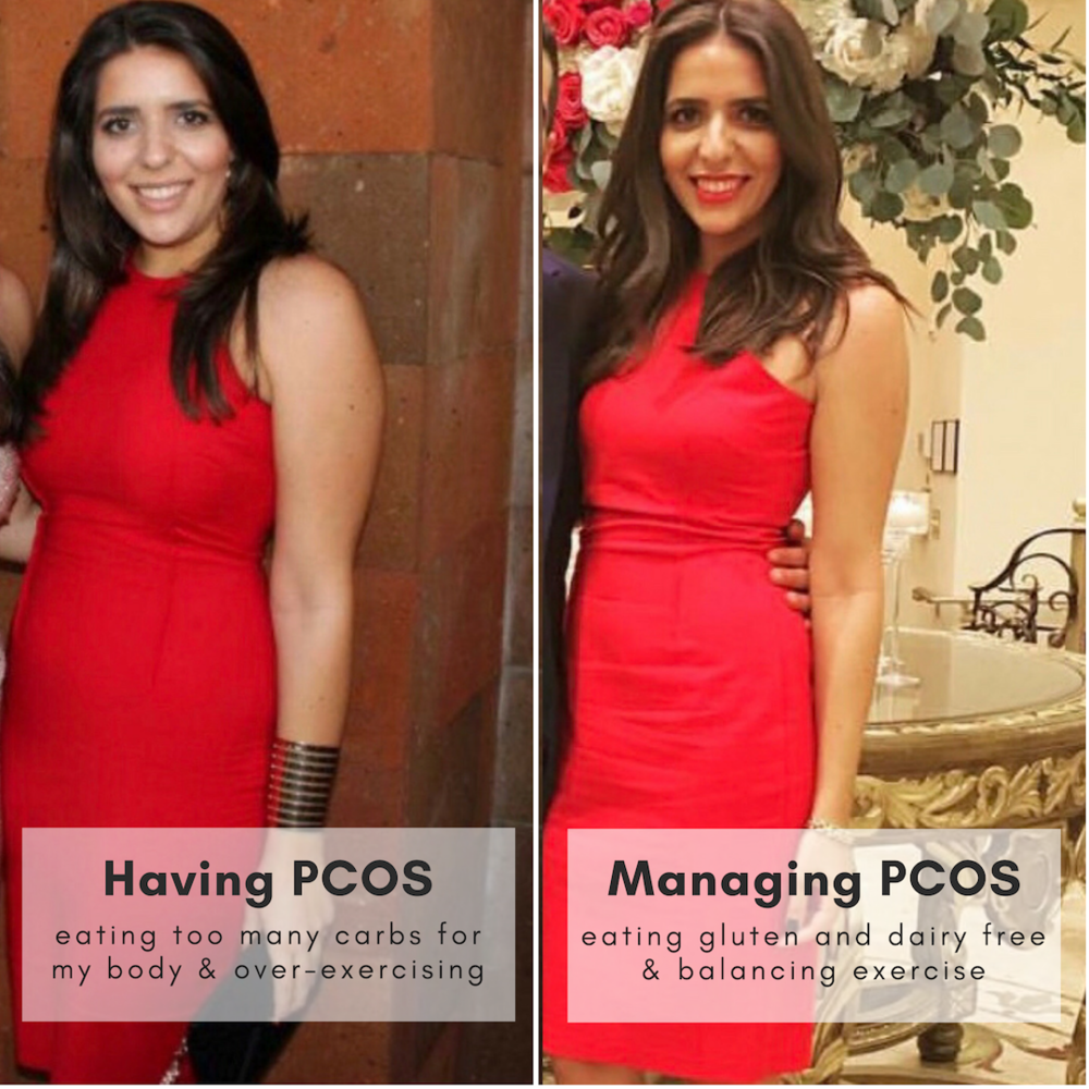 pcos nutritionist