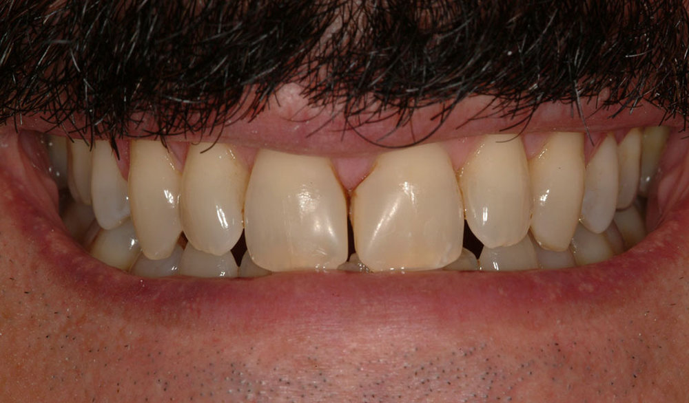 Before Dr. Victor A. Martel repaired this person's smile